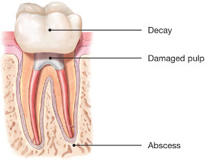 Root Canals Explained – Pulsipher Endodontics