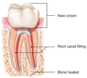 Pulsipher Endodontics